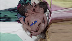 Abandoned conjoined twins die at...