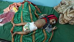 Yemen's children starve as war drags...