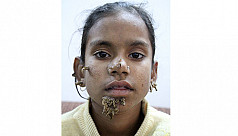 Girl with 'tree man' disease undergoes...