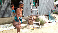 Bangladesh man affected with tumour...