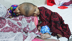Conjoined twins admitted to DMCH