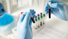 Study: Cancer blood test finds eight...