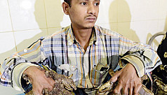 'Tree Man' Bajandar wants hands amputated to relieve pain
