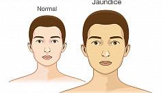 Number of jaundice patients rapidly...