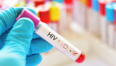 London man 2nd patient to be cured of HIV