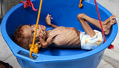 UN: Over 113 million people suffer 'acute...