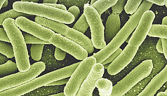 Antibiotic resistance: researchers have directly proven that bacteria can change shape inside humans to avoid...