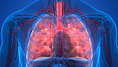 Respiratory and infectious diseases...