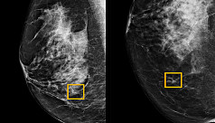 AI beats human breast cancer diagnosis