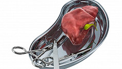 Liver transplant now in Bangladesh at comparatively low cost