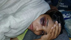 College-girl tortured by 'Badshah of...