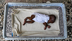 UN: Pandemic to bring surge in child wasting cases